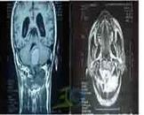 神经鞘源性肿瘤