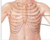 胸壁软组织畸形