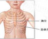 胸骨骨髓炎