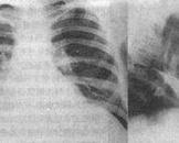 胸壁软组织肿瘤