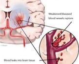 小儿急性偏瘫(其他名称:小儿脑动脉血栓形成)
