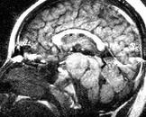 下丘脑错构瘤