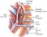 胸导管损伤