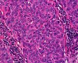 胸腺小细胞癌