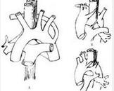 血管畸形引起的吞咽困难
