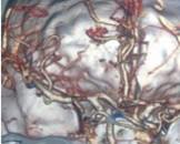 小儿脑血管畸形