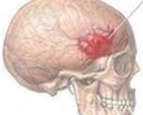 小儿硬脑膜下血肿