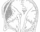 小脑幕脑膜瘤