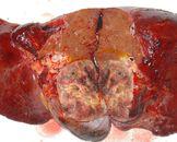小儿肝肿瘤