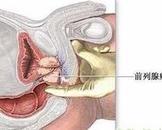 老年人前列腺癌