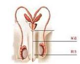 男性尿道癌