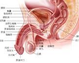 膀胱尿道异物