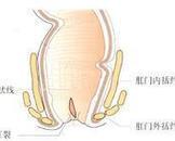 肛窦炎及肛乳头炎