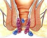 肛门直肠周围脓肿