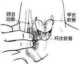 股神经干性痛