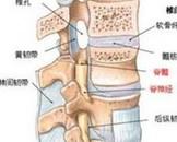 极外侧型腰椎间盘突出症