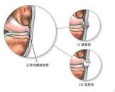 膝关节侧副韧带损伤