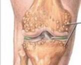 膝关节骨性关节炎(其他名称:膝痹)