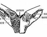 胸锁关节脱位