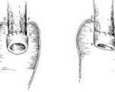 食管重复畸形(其他名称:食道重复畸形,双食管畸形)
