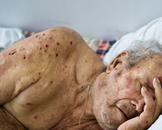 老年癌症病人的急性感染(其他名称:老年癌症病人急性感染)