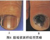 皮肤恶性黑色素瘤