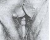 乳头状小汗腺腺瘤