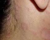 朗格汉斯细胞组织细胞增生症(其他名称:组织细胞增生症,莱特勒西韦综合征,汉-薛-柯综合征,骨嗜酸肉芽肿,细胞组织细胞增生症)