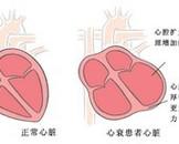 新生儿低镁血症