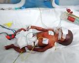 新生儿弥散性血管内凝血(其他名称:新生儿播散性血管内凝血,新生儿弥漫性血管内凝血)