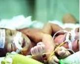 新生儿晚期代谢性酸中毒(其他名称:新生儿晚期代酸)