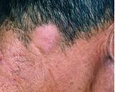毛囊性黏蛋白病