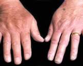 皮肤癣菌病