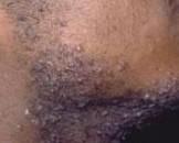 须部假毛囊炎(其他名称:须部假性毛囊炎)