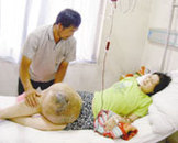 恶性骨肿瘤