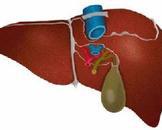 肝功能衰竭