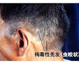 梅毒性脱发