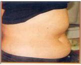皮下脂肪增多