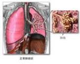 呼吸窘迫综合症