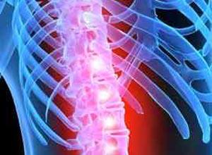 脊髓的浸润