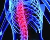 脊髓横贯损害