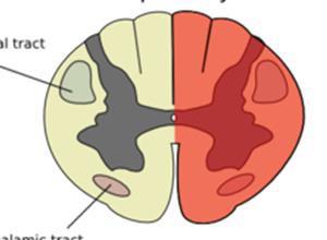脊髓半切综合征