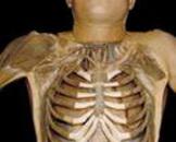 胸腔出口综合征