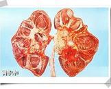 泌尿道阻塞