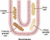 尿内出现蛋白及管型