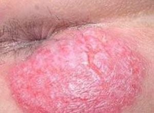 肛门湿疹瘙痒