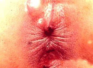 直肠肛门内胀痛不适