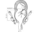 子宫呈横椭圆形