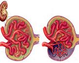 慢性肾功能衰竭