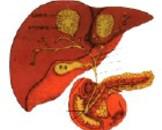 胃肠道淤血